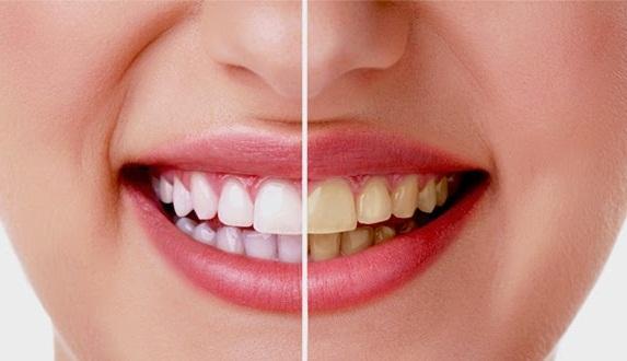 8 Cara Memutihkan Gigi dengan Cepat dan Permanen