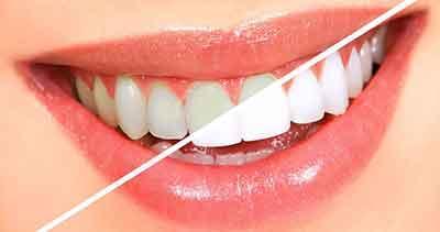 Cara Membersihkan Karang Gigi Dengan Bahan Alami Dan Cepat